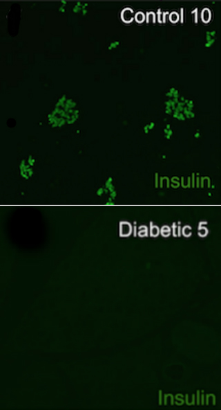 Diabetic dogs had a sharp loss of insulin-producing beta cells compared to non-diabetic dogs